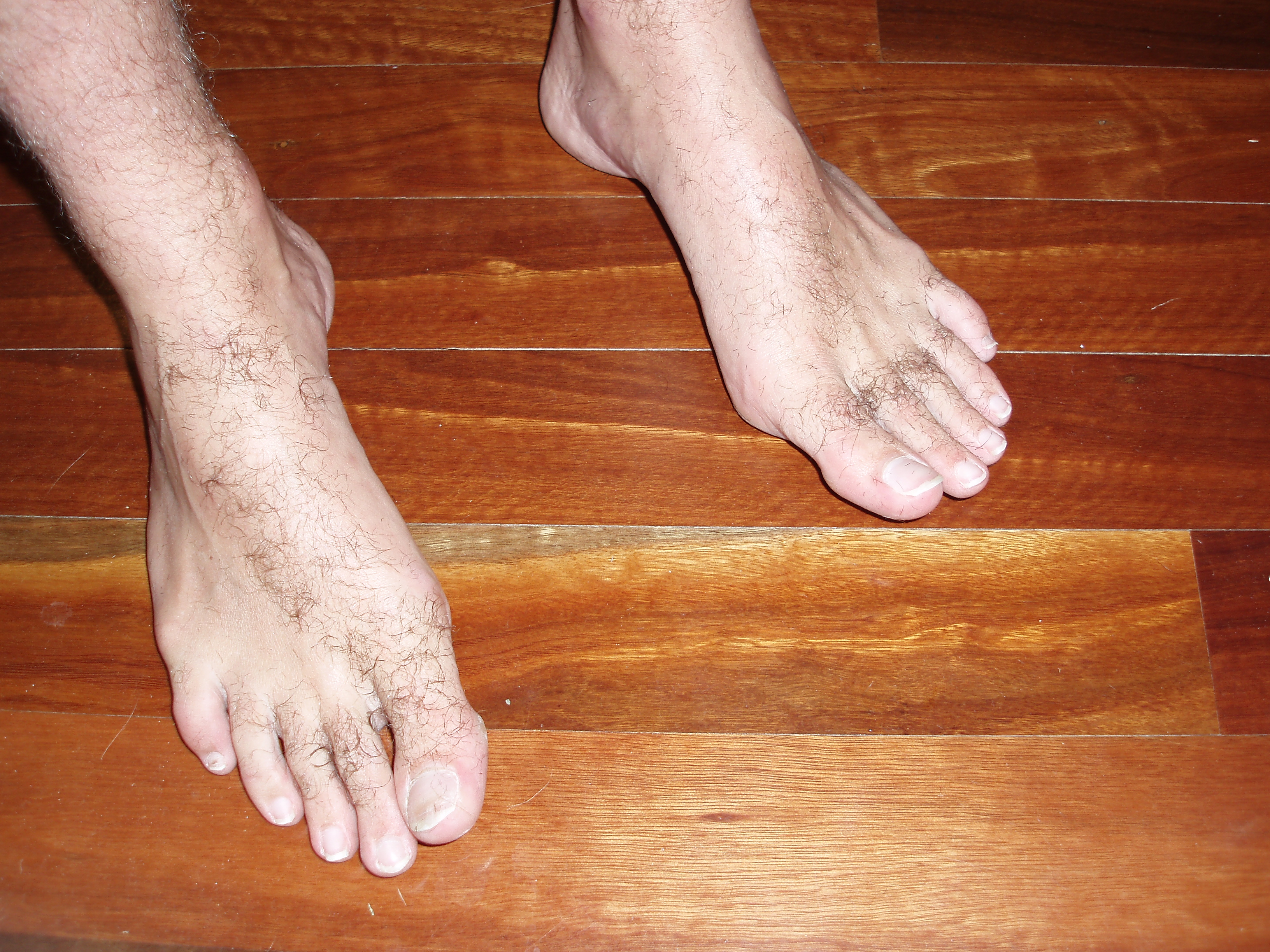 photo of hairy bare feet